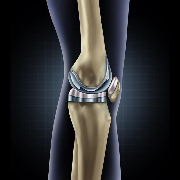 diz protezi nedir