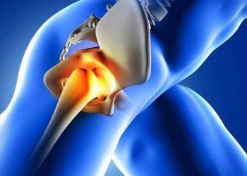 kalça protezi hangi durumlarda takılır